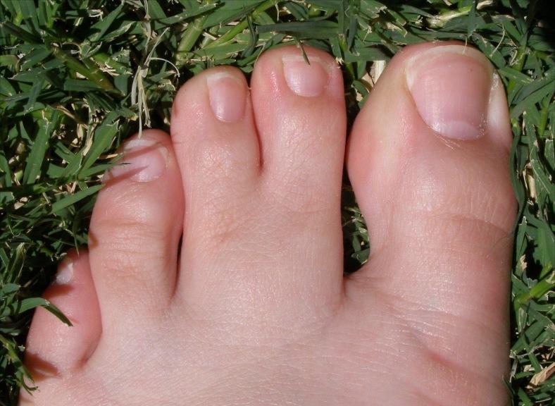 dedo deforme
